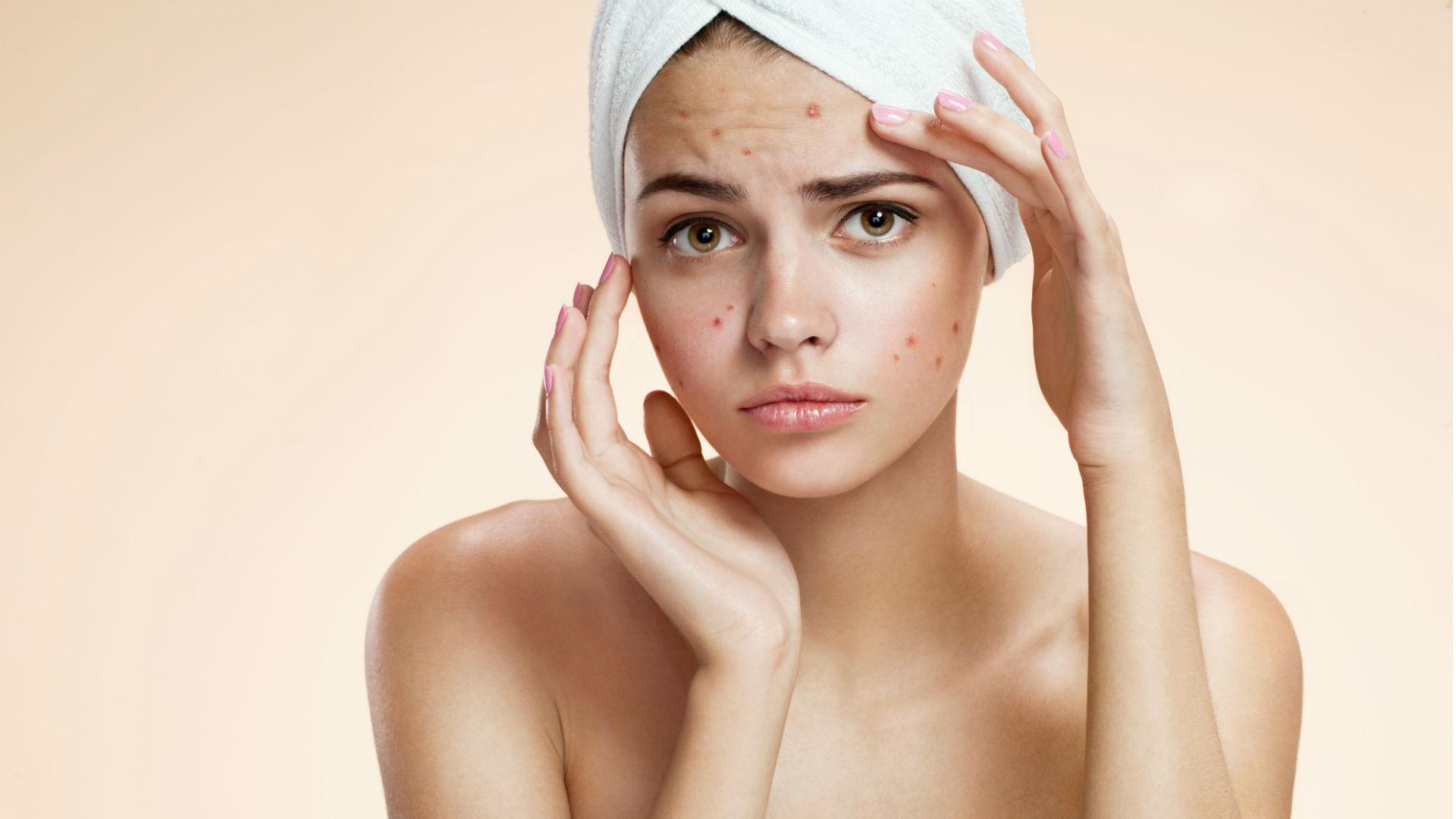 mujer-con-toalla-en-el-cabello-y-con-acné-en-el-rostro
